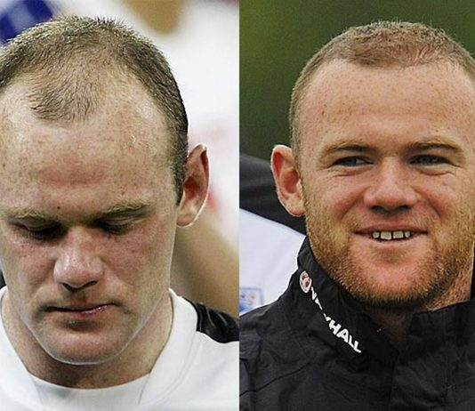 some famous people with hair transplants