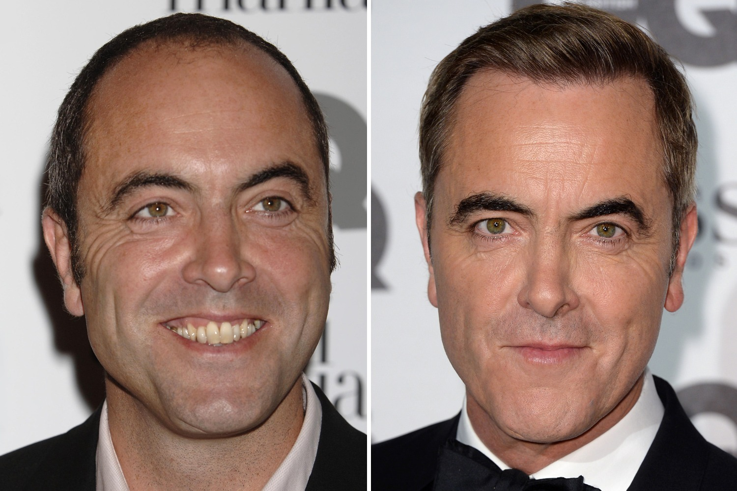 famous people with hair transplants
